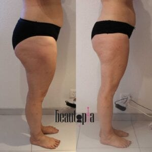 Maderotherapy before and after picture