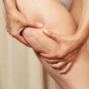 Mit Maderotherapie gegen Cellulite